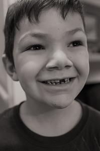 Ari's smile (same tooth, same age as Maggie)